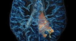diplomado manejo radioterápico y farmacológico de los tumores cerebrales