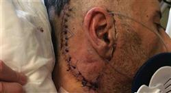 formacion manejo de tumores cerebrales especiales