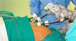 posgrado tumores del tubo digestivo superior