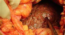 diplomado tumores pancreáticos biliares y hepáticos
