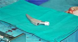 diplomado urgencias traumatológicas de la pelvis y miembro inferior