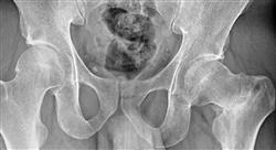 posgrado urgencias traumatológicas de la pelvis y miembro inferior