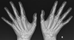 diplomado ecografía musculo esquelética  y estudios radiológicos  en urgencias traumatológicas