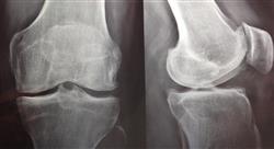 formacion ecografía musculo esquelética  y estudios radiológicos  en urgencias traumatológicas