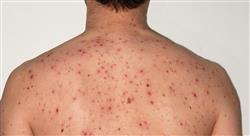 posgrado salud pública y enfermedad infecciosa en urgencias