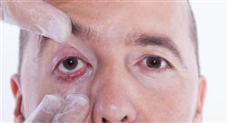 curso infecciones oftalmológicas otorrinolaringológicas y de la cavidad oral en urgencias