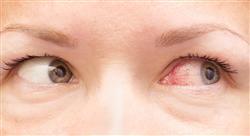 posgrado infecciones oftalmológicas otorrinolaringológicas y de la cavidad oral en urgencias