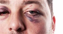 estudiar valoración del daño en medicina judicial forense