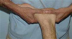 experto ecografía musculoesquelética de pie y tobillo para el médico rehabilitador