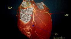 diplomado guías de actualización en patologías cardiaca aguda
