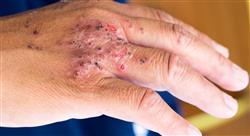 especializacion microbiota de la piel