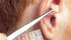 diplomado auriculo terapia