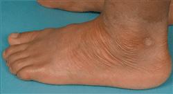 maestria online dermatología clínica