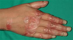 master dermatología clínica
