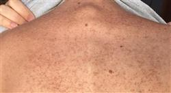 especializacion online patología dermatológica más frecuente