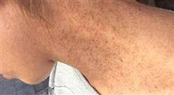 especializacion patología dermatológica más frecuente