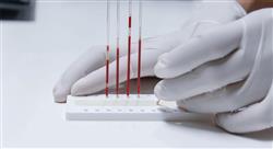 especializacion actualidad en el uso del laboratorio de hematología terapéutica hematológica y hemoterapia