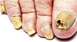 estudiar dermatología oncológica e infecciosa