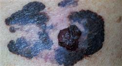 experto universitario dermatología oncológica e infecciosa