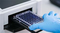 posgrado actualidad de discrasias de células plasmáticas