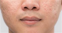especializacion online principales tratamientos del acné