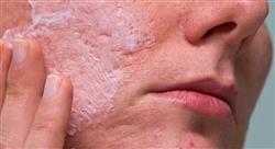 experto universitario principales tratamientos del acné