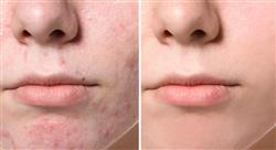 especializacion etiología del acné