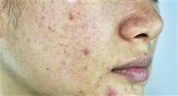 experto universitario etiología del acné