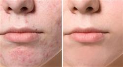 estudiar tratamientos modernos y otros tratamientos del acné y sus cicatrices