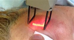 diplomado láser y fuentes de luz  en medicina estética