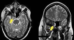 formacion traumatismos y neurooncología