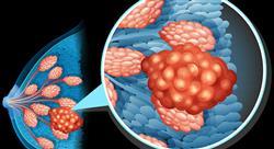 formacion anatomía patológica en mastología