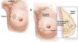curso cirugía plástica y reconstructiva de mama