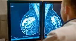 curso terapia sistemica cancer mama 6