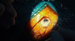 experto universitario cirugía oftalmológica