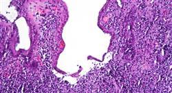 diplomado métodos diagnósticos en la enfermedad  inflamatoria intestinal