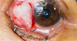 especializacion online patologías oculares y tratamiento
