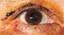 experto patologias oculares tratamiento 6