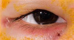 experto universitario patologías oculares y tratamiento