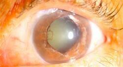 especializacion online glaucoma y patología ocular pediátrica