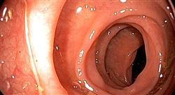 especializacion online clínica y diagnóstico en enfermedades inflamatorias digestivas