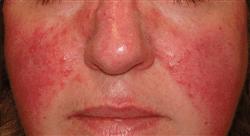 diplomado enfermedades dermatológicas hereditarias
