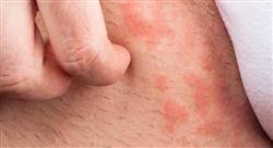 formacion enfermedades dermatológicas hereditarias