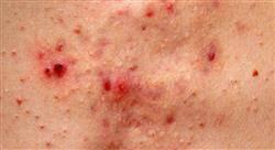 curso patología de la unión pilosebácea