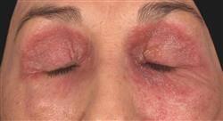 curso patología dermatológica: conectivopatías