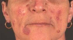 diplomado patología dermatológica: conectivopatías