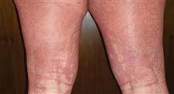 curso patología dermatológica infecciosa