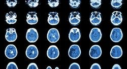 master enfermedades neurodegenerativas