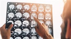 estudiar métodos diagnósticos neurona motora y ataxias