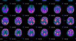 formacion métodos diagnósticos de las enfermedades neurodegenerativas